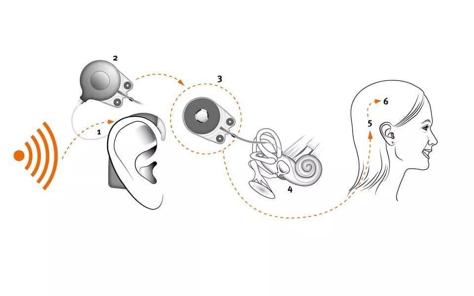 Як працює система кохлеарної імплантації